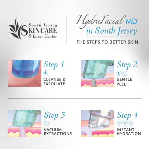 Several steps combine into one HydraFacial MD® treatment at South Jersey Laser Center.
