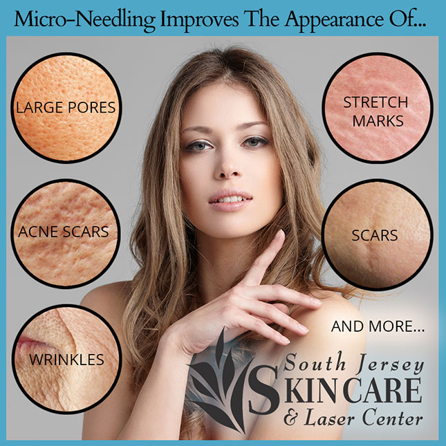 Discover what micro-needling can do at South Jersey Skin Care and Laser Center