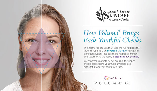 The tapering effect of Voluma® at South Jersey Skin Care & Laser Center can give the face a youthful inverted triangle shape.