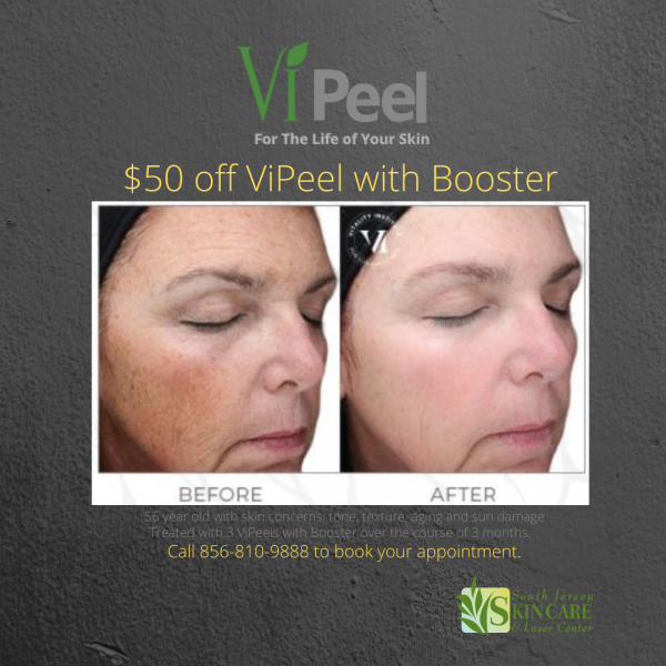 VIPeel $50 off Special